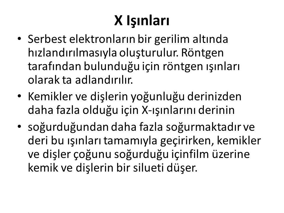 X Işınları