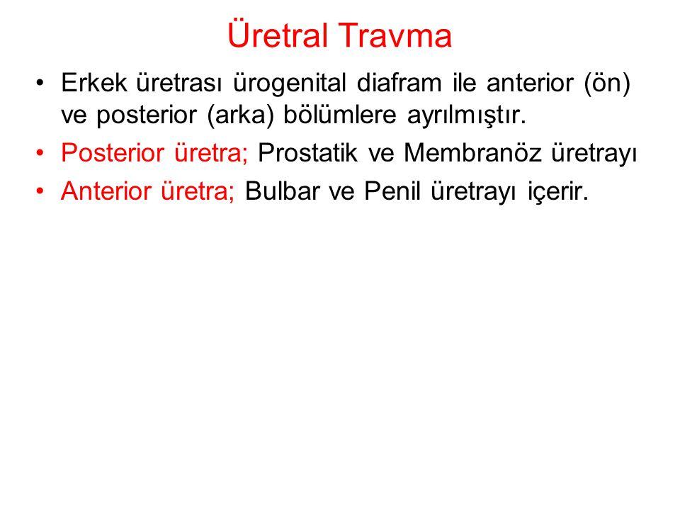 Üretral Travma Erkek üretrası ürogenital diafram ile anterior (ön) ve posterior (arka) bölümlere ayrılmıştır.