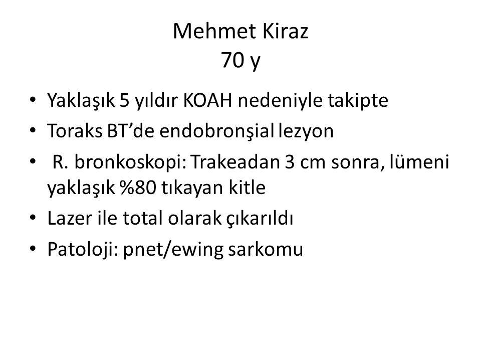 Mehmet Kiraz 70 y Yaklaşık 5 yıldır KOAH nedeniyle takipte