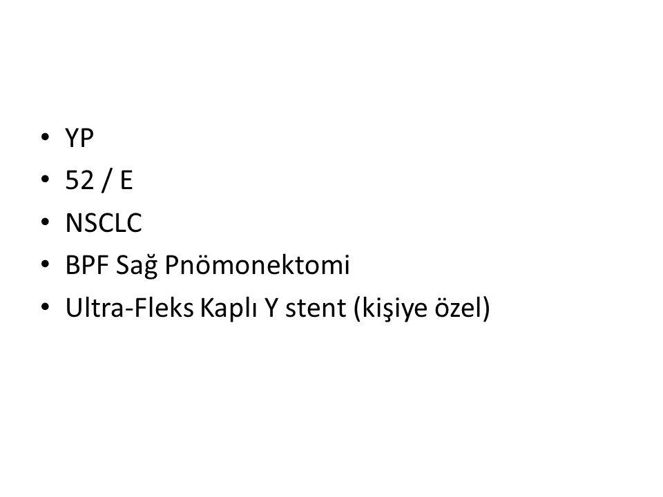 YP 52 / E NSCLC BPF Sağ Pnömonektomi Ultra-Fleks Kaplı Y stent (kişiye özel)