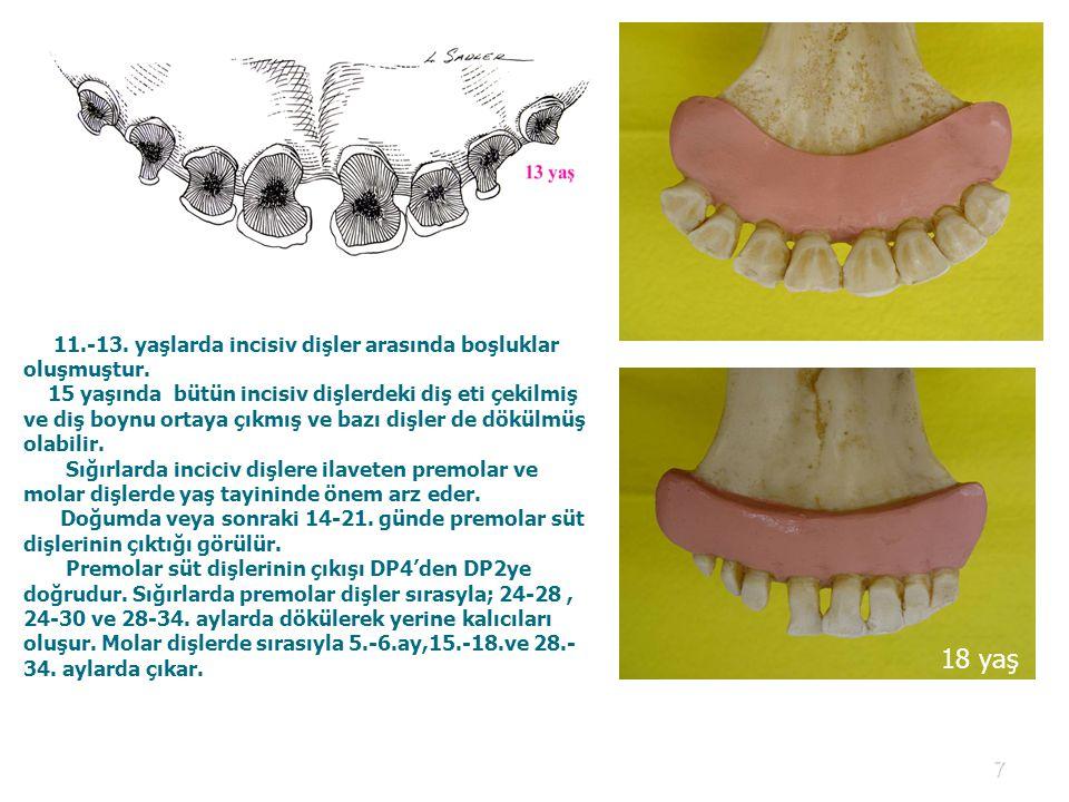 18 yaş 11.-13. yaşlarda incisiv dişler arasında boşluklar oluşmuştur.
