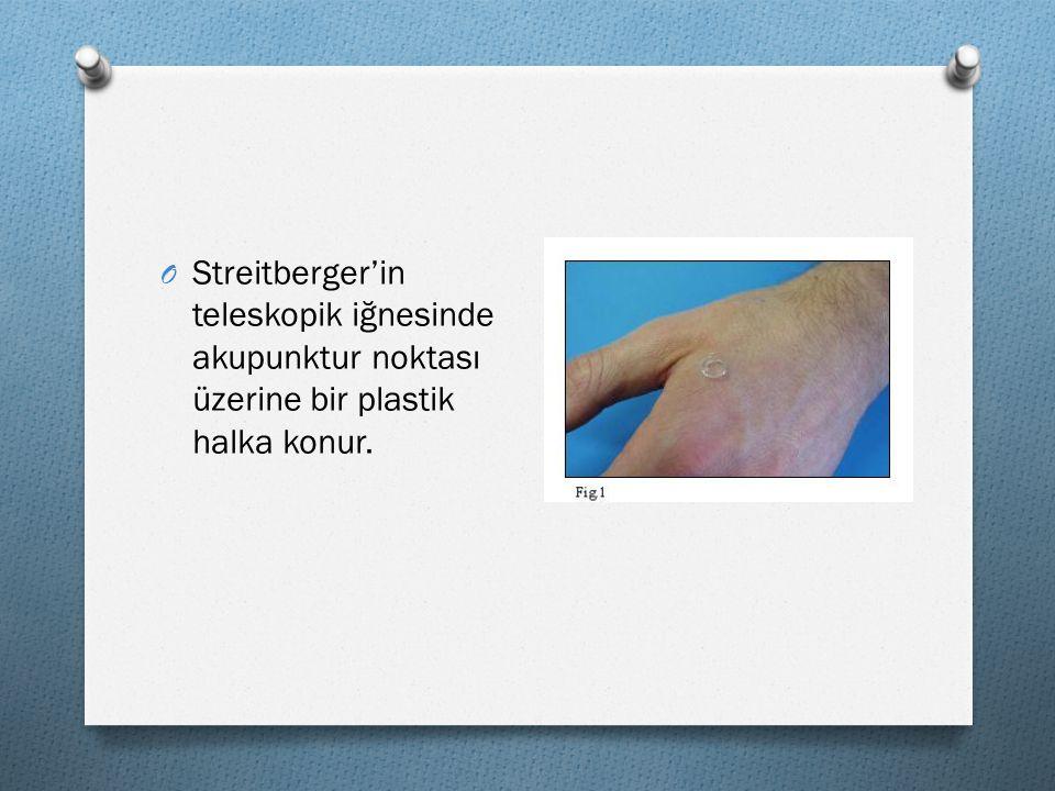 Streitberger'in teleskopik iğnesinde akupunktur noktası üzerine bir plastik halka konur.
