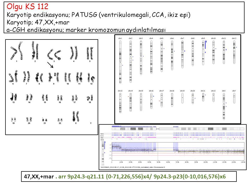Olgu KS 112 Karyotip endikasyonu; PATUSG (ventrikulomegali, CCA, ikiz eşi) Karyotip; 47,XX,+mar a-CGH endikasyonu; marker kromozomun aydınlatılması