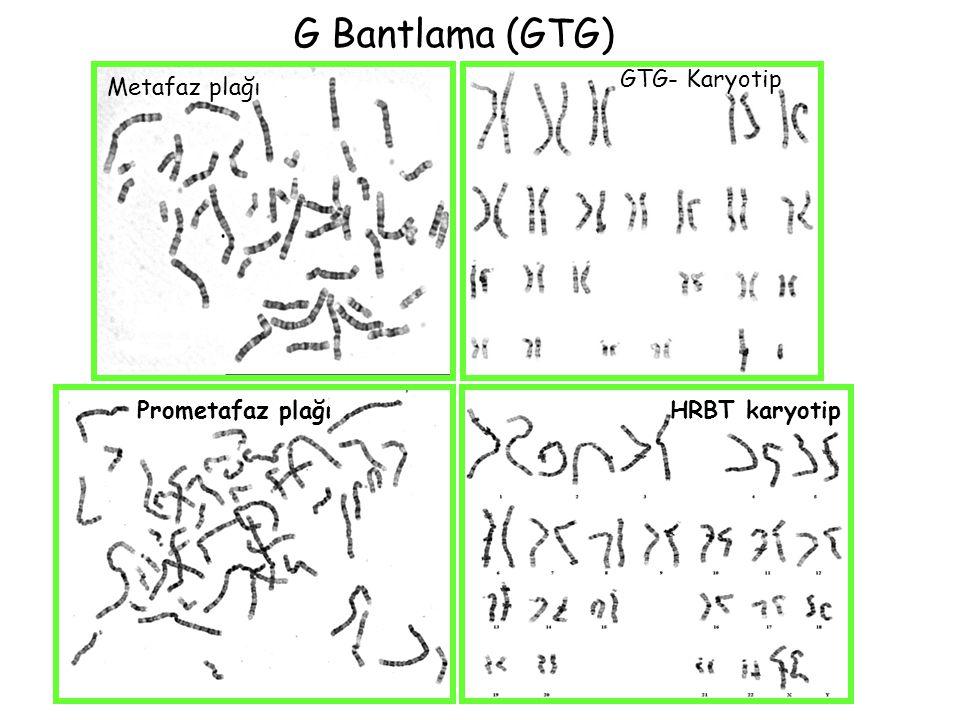 G Bantlama (GTG) GTG- Karyotip Metafaz plağı Prometafaz plağı