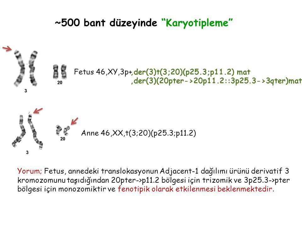 ~500 bant düzeyinde Karyotipleme