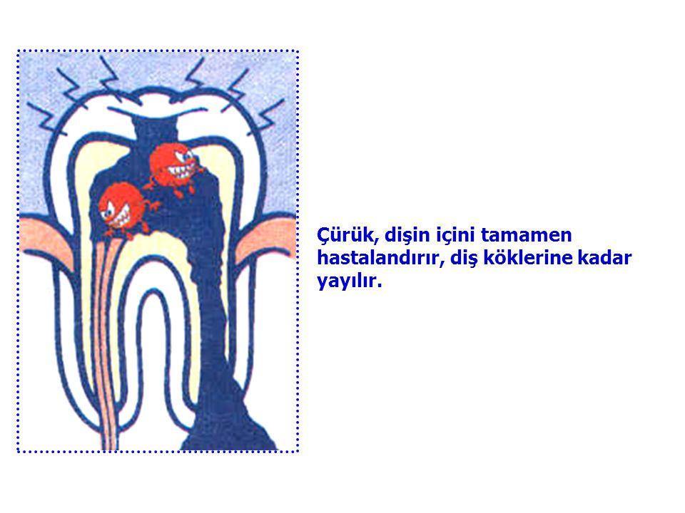 Çürük, dişin içini tamamen hastalandırır, diş köklerine kadar yayılır.