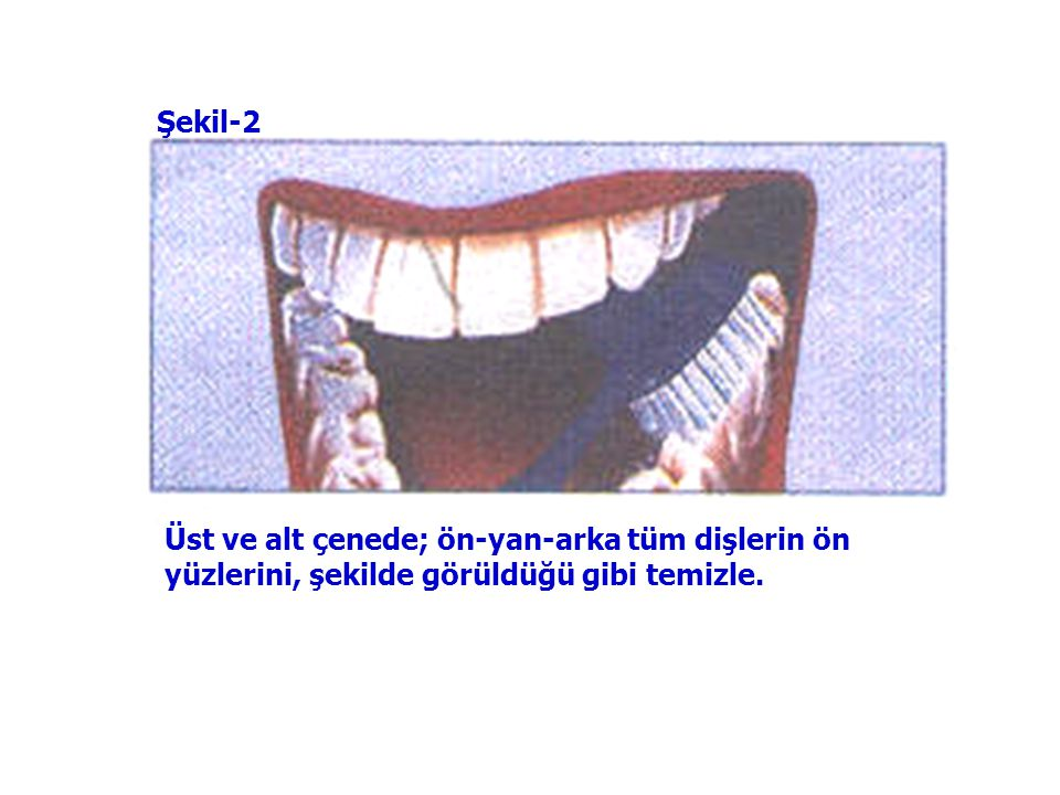 Şekil-2 Üst ve alt çenede; ön-yan-arka tüm dişlerin ön yüzlerini, şekilde görüldüğü gibi temizle.