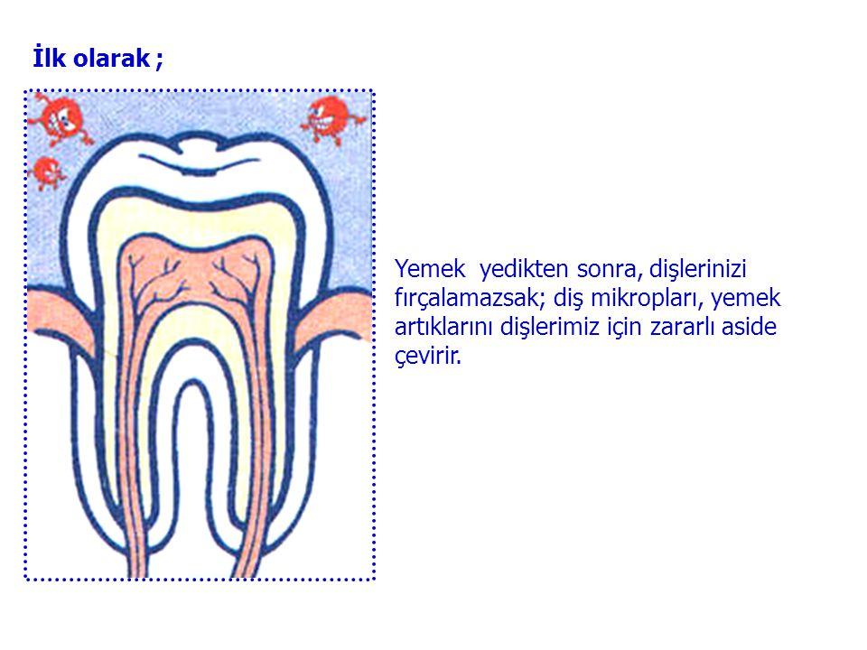 İlk olarak ; Yemek yedikten sonra, dişlerinizi fırçalamazsak; diş mikropları, yemek artıklarını dişlerimiz için zararlı aside çevirir.