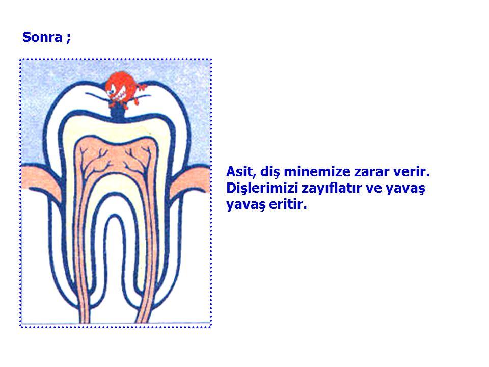 Sonra ; Asit, diş minemize zarar verir. Dişlerimizi zayıflatır ve yavaş yavaş eritir.