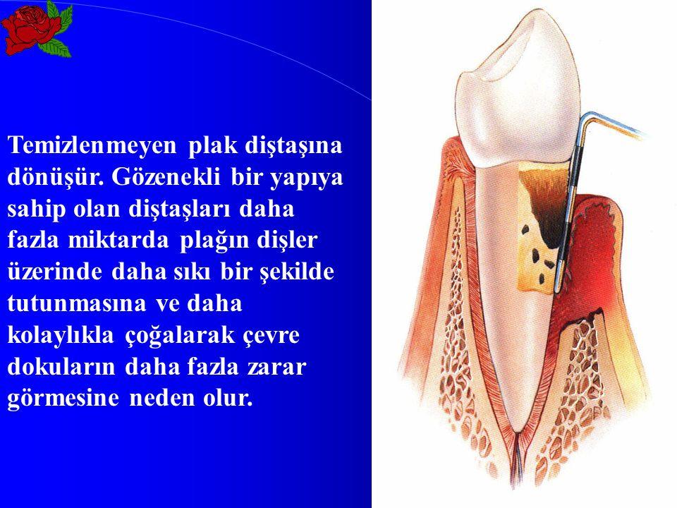 Temizlenmeyen plak diştaşına dönüşür