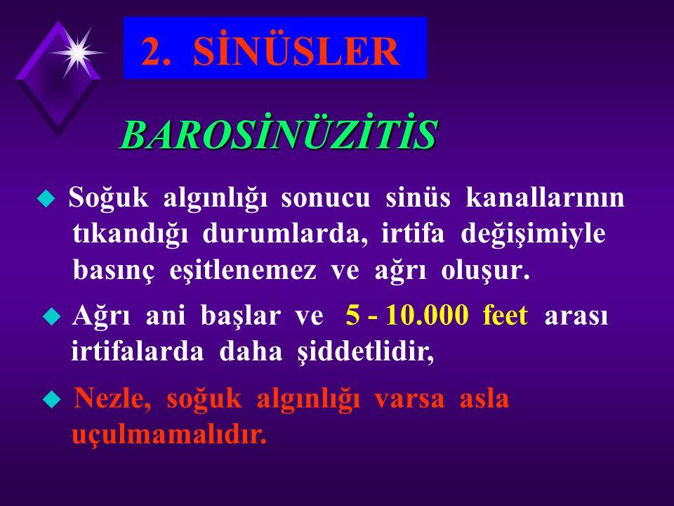 2. SİNÜSLER BAROSİNÜZİTİS Soğuk algınlığı sonucu sinüs kanallarının