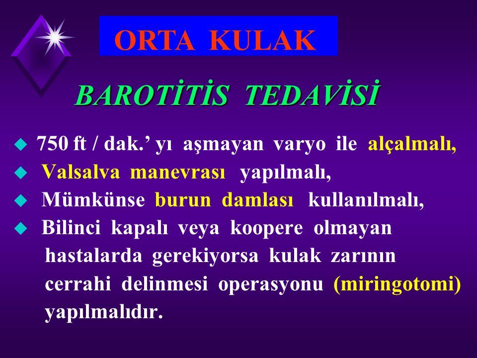 ORTA KULAK BAROTİTİS TEDAVİSİ