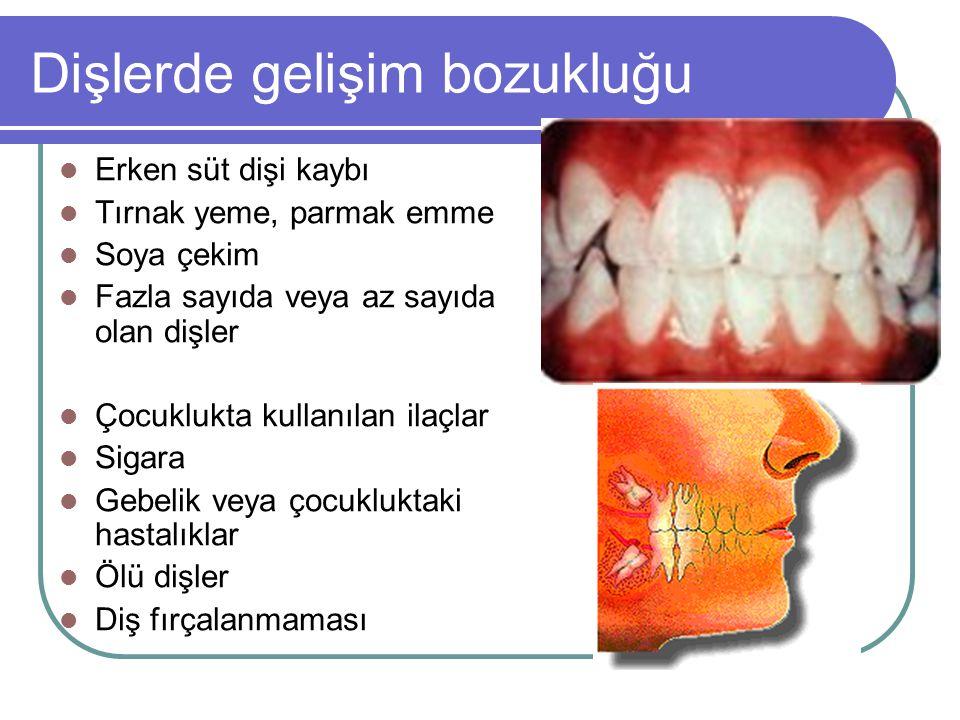 Dişlerde gelişim bozukluğu
