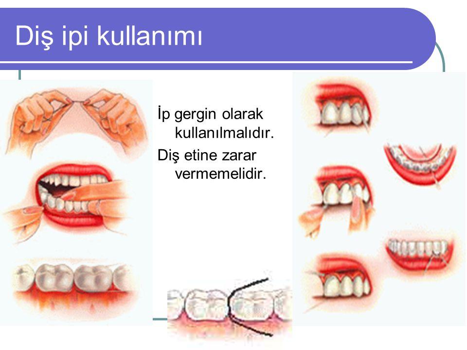 Diş ipi kullanımı İp gergin olarak kullanılmalıdır.