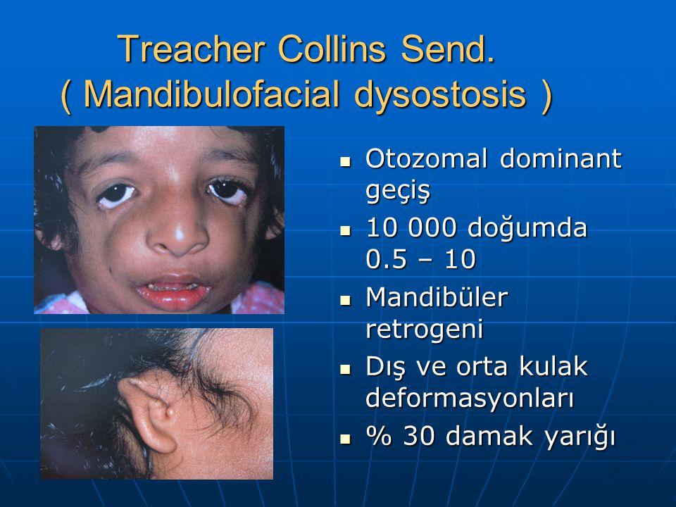 Treacher Collins Send. ( Mandibulofacial dysostosis )