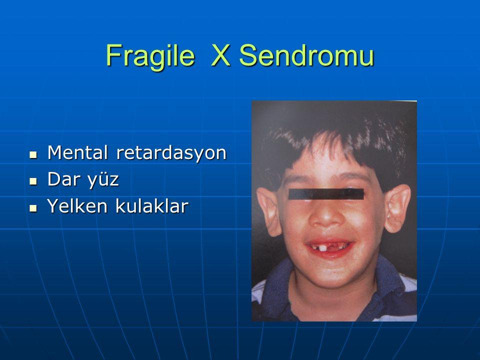 Fragile X Sendromu Mental retardasyon Dar yüz Yelken kulaklar
