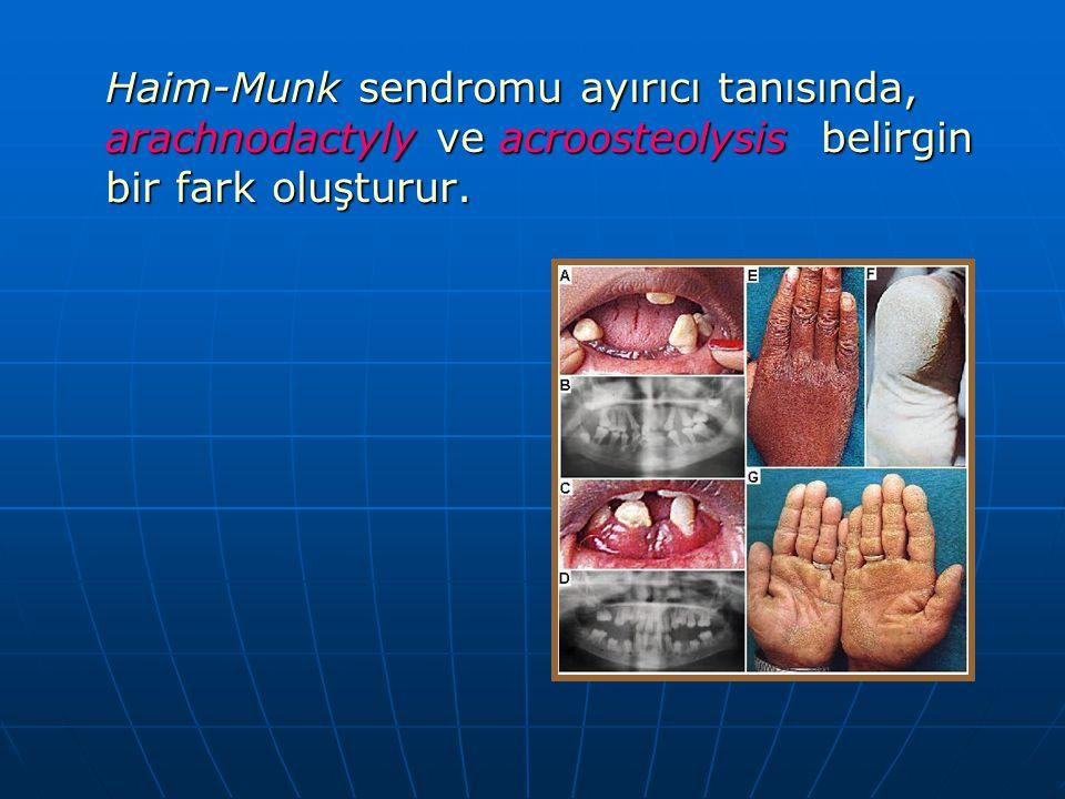 Haim-Munk sendromu ayırıcı tanısında, arachnodactyly ve acroosteolysis belirgin bir fark oluşturur.