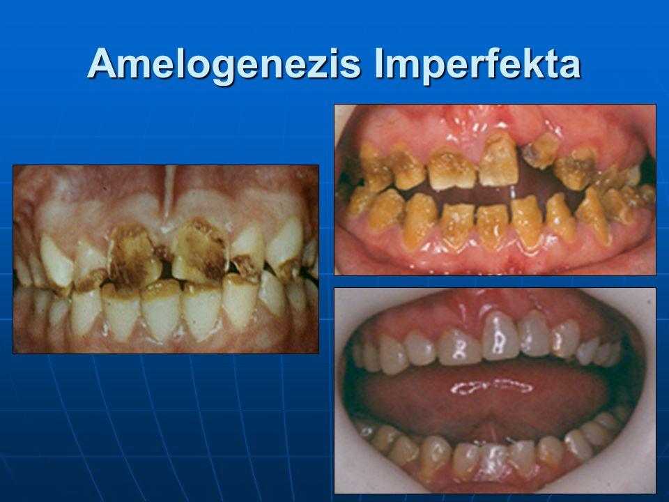 Amelogenezis Imperfekta