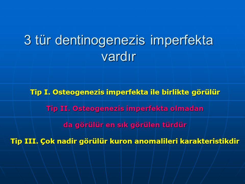 3 tür dentinogenezis imperfekta vardır
