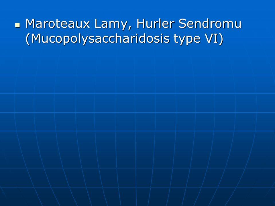 Maroteaux Lamy, Hurler Sendromu (Mucopolysaccharidosis type VI)