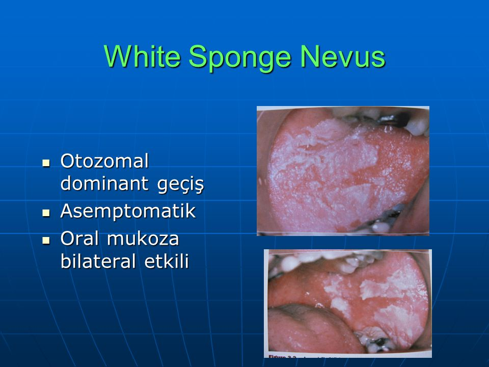 White Sponge Nevus Otozomal dominant geçiş Asemptomatik