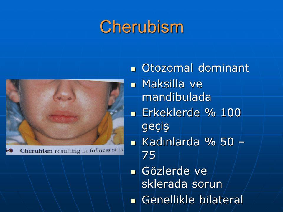 Cherubism Otozomal dominant Maksilla ve mandibulada