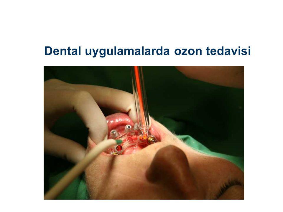 Dental uygulamalarda ozon tedavisi