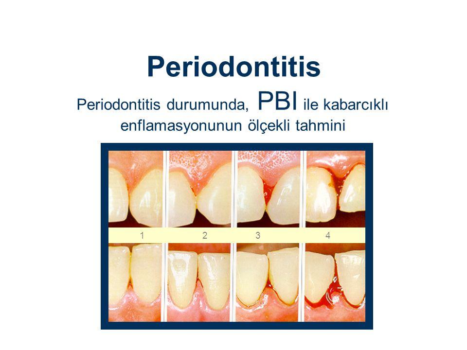 Periodontitis Periodontitis durumunda, PBI ile kabarcıklı enflamasyonunun ölçekli tahmini.