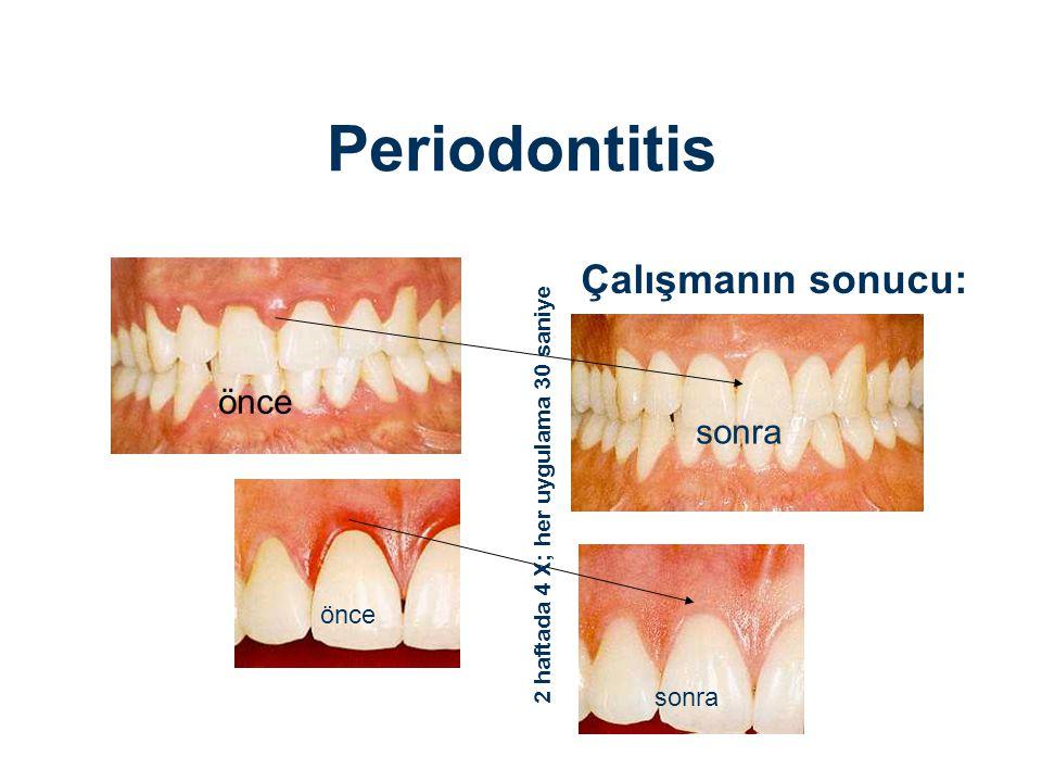 Periodontitis Çalışmanın sonucu: önce sonra önce sonra