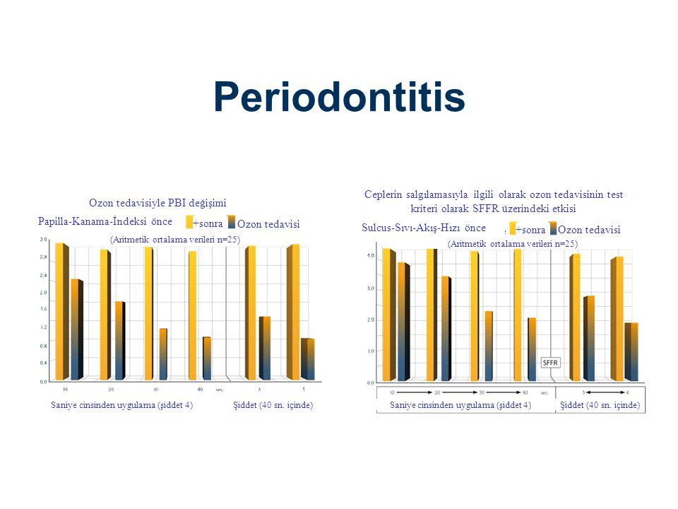 Periodontitis Ceplerin salgılamasıyla ilgili olarak ozon tedavisinin test kriteri olarak SFFR üzerindeki etkisi.