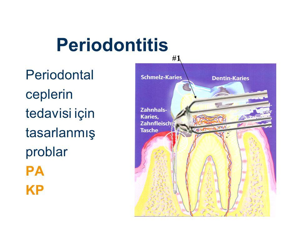 Periodontitis Periodontal ceplerin tedavisi için tasarlanmış problar