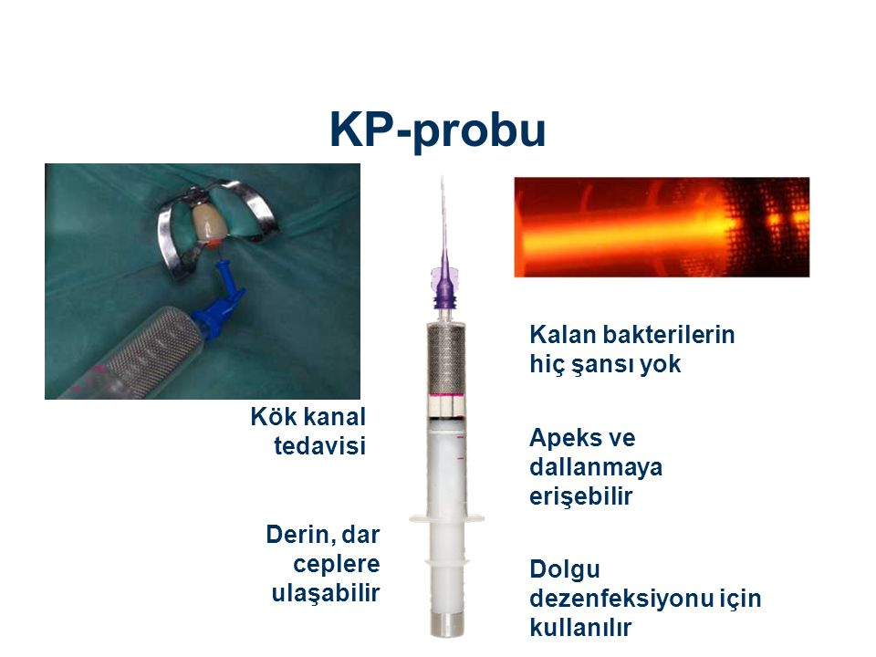KP-probu Kalan bakterilerin hiç şansı yok Kök kanal tedavisi