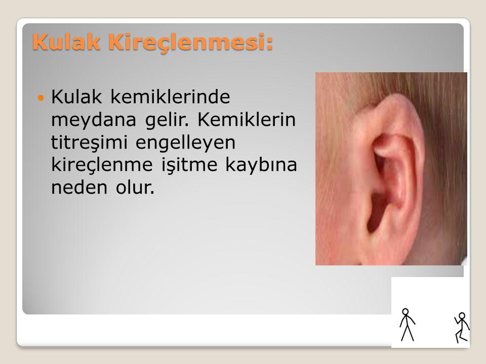 Kulak Kireçlenmesi: Kulak kemiklerinde meydana gelir.