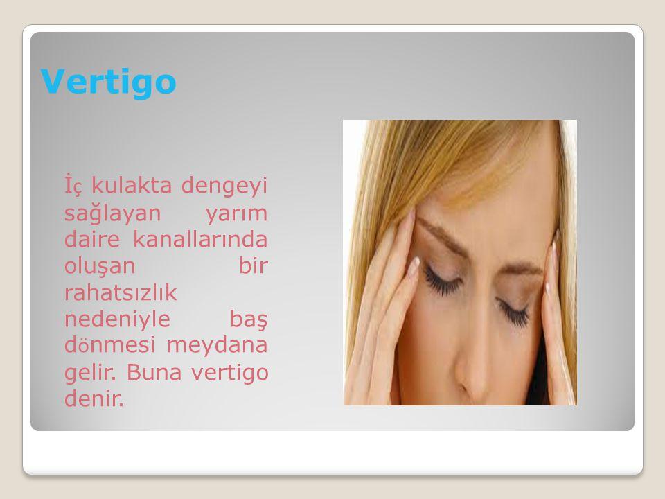 Vertigo İç kulakta dengeyi sağlayan yarım daire kanallarında oluşan bir rahatsızlık nedeniyle baş dönmesi meydana gelir.