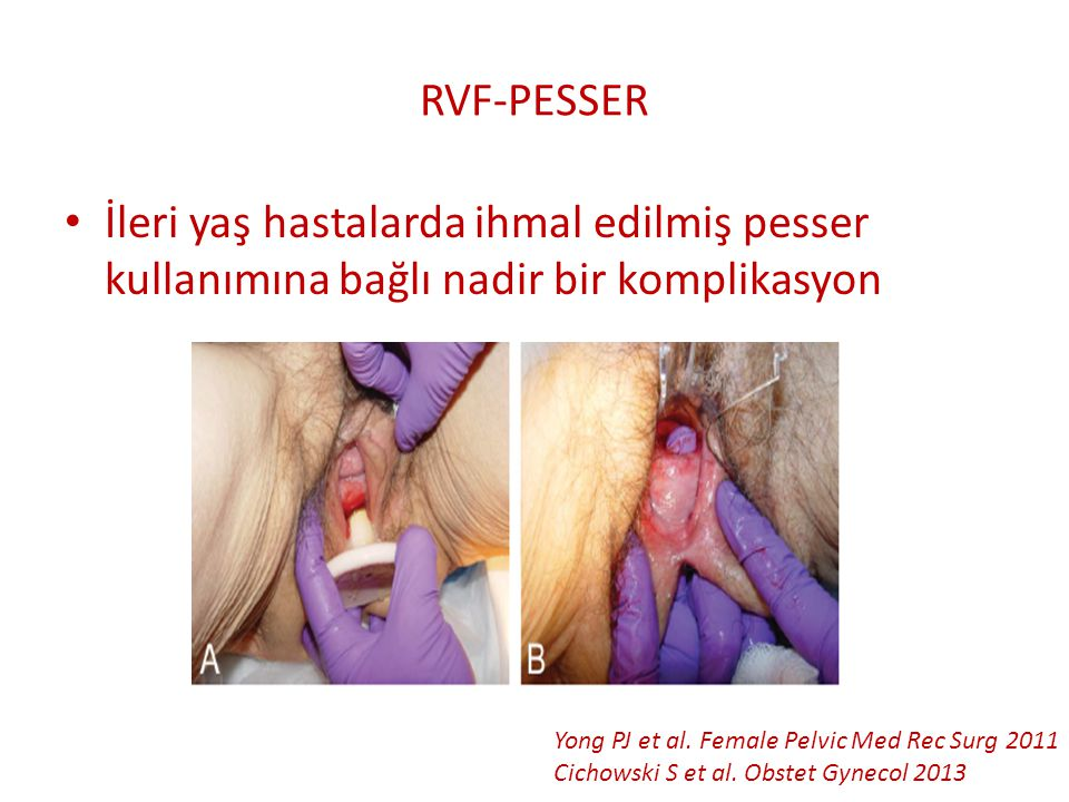 RVF-PESSER İleri yaş hastalarda ihmal edilmiş pesser kullanımına bağlı nadir bir komplikasyon. Yong PJ et al. Female Pelvic Med Rec Surg 2011.