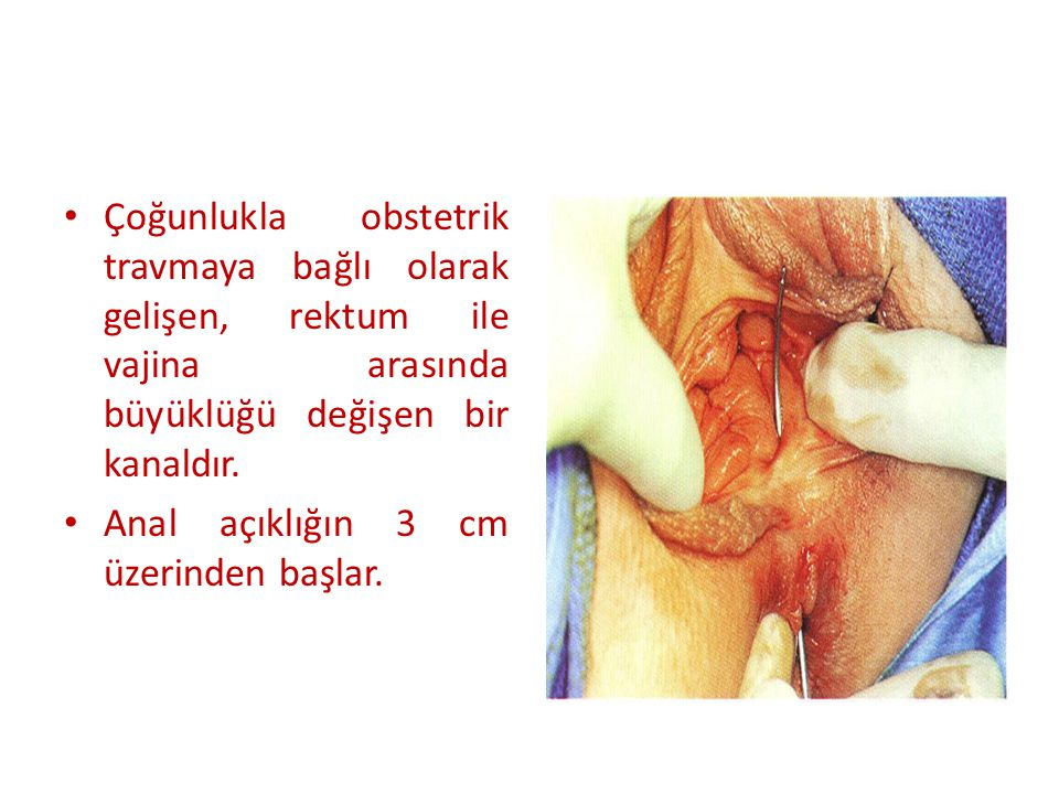 Çoğunlukla obstetrik travmaya bağlı olarak gelişen, rektum ile vajina arasında büyüklüğü değişen bir kanaldır.