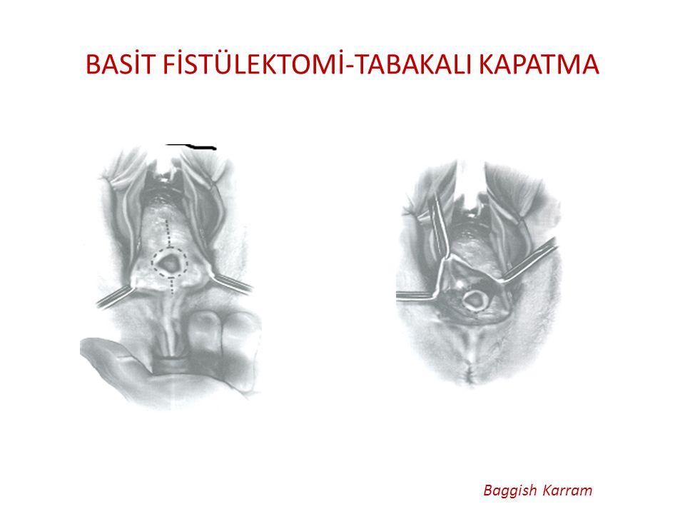 BASİT FİSTÜLEKTOMİ-TABAKALI KAPATMA