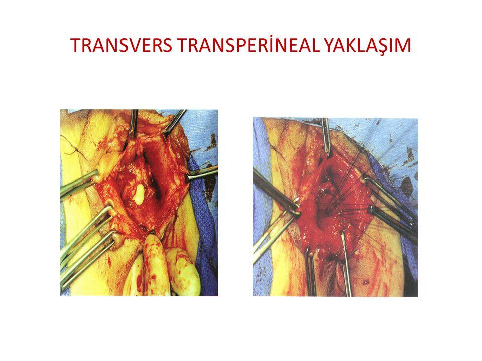 TRANSVERS TRANSPERİNEAL YAKLAŞIM