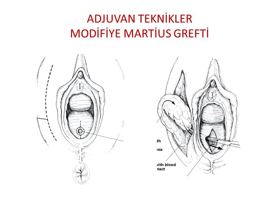 ADJUVAN TEKNİKLER MODİFİYE MARTİUS GREFTİ