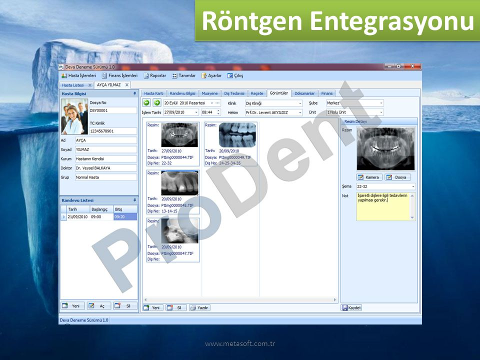 Röntgen Entegrasyonu www.metasoft.com.tr