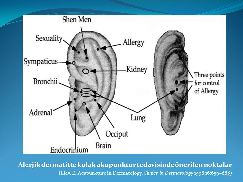 Alerjik dermatitte kulak akupunktur tedavisinde önerilen noktalar