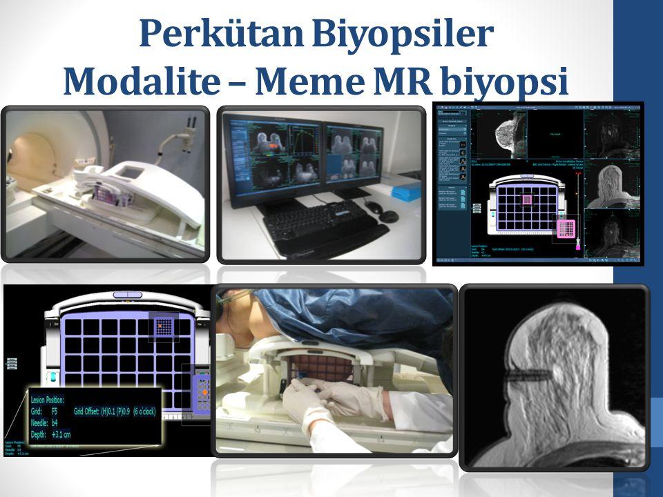 Perkütan Biyopsiler Modalite – Meme MR biyopsi