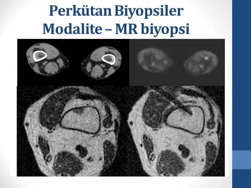 Perkütan Biyopsiler Modalite – MR biyopsi