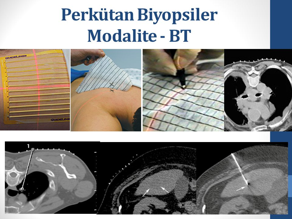 Perkütan Biyopsiler Modalite - BT