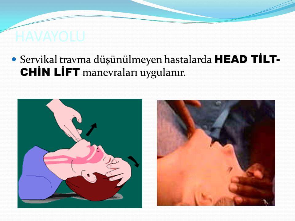 HAVAYOLU Servikal travma düşünülmeyen hastalarda HEAD TİLT-CHİN LİFT manevraları uygulanır.