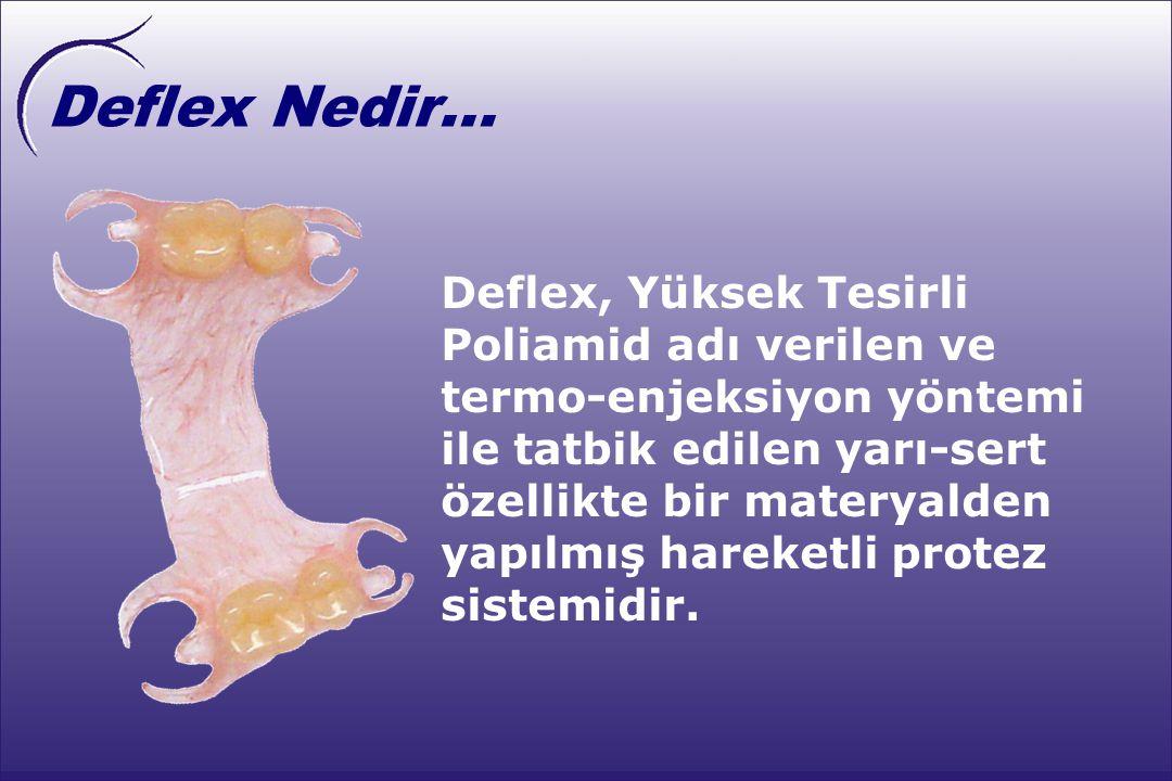 Deflex Nedir...