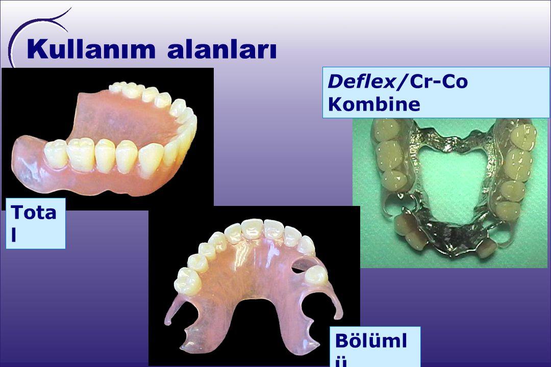 Kullanım alanları Deflex/Cr-Co Kombine Total Bölümlü