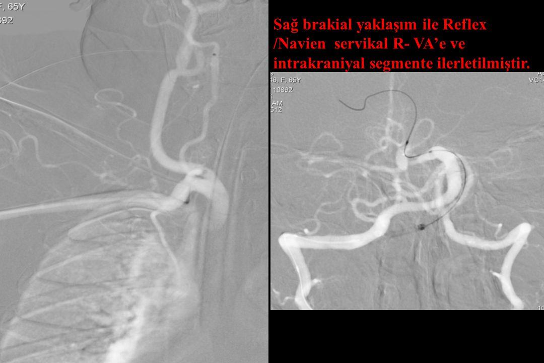 Sağ brakial yaklaşım ile Reflex /Navien servikal R- VA'e ve intrakraniyal segmente ilerletilmiştir.