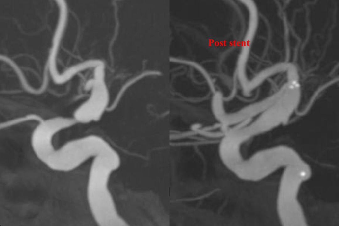 Post stent