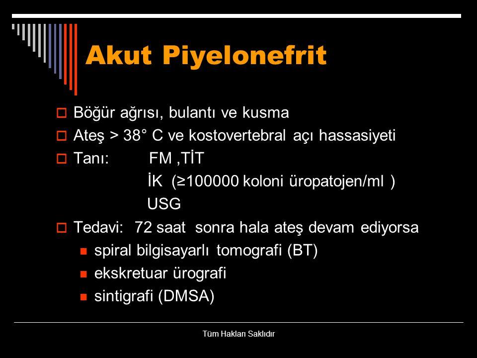 Akut Piyelonefrit Böğür ağrısı, bulantı ve kusma